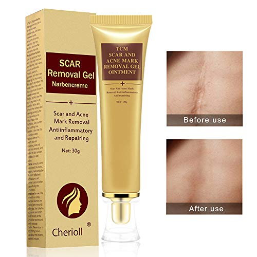 Scar Cream Acne Scar Removal Cream Acne Spots Treatment Stretch